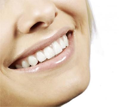 Tandblekning för att få ljusare tänder